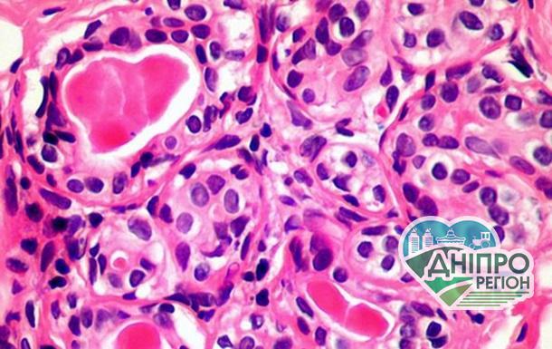 Клітина, що вбиває рак
